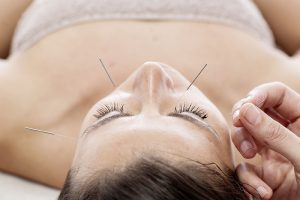cosmetic acupuncture fitzroy north