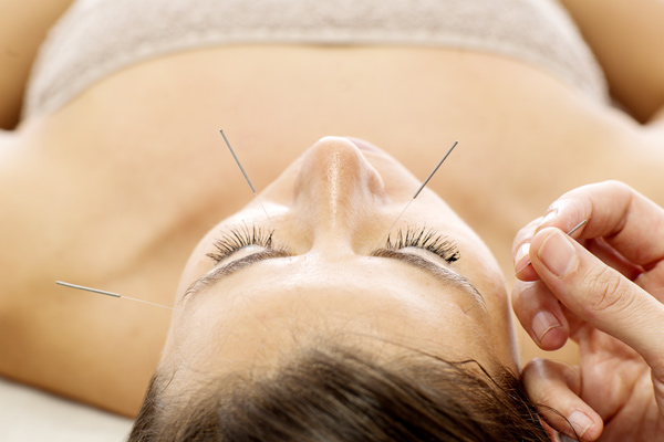cosmetic acupuncture fitzroy north melbourne